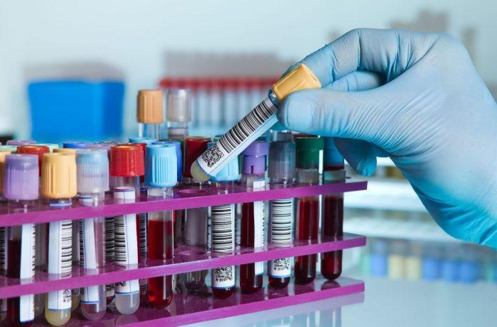 Niente credito d'imposta per i test sierologici Covid-19 sui dipendenti